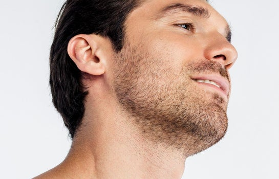 Facial Hair Transplant-Beard Transplant